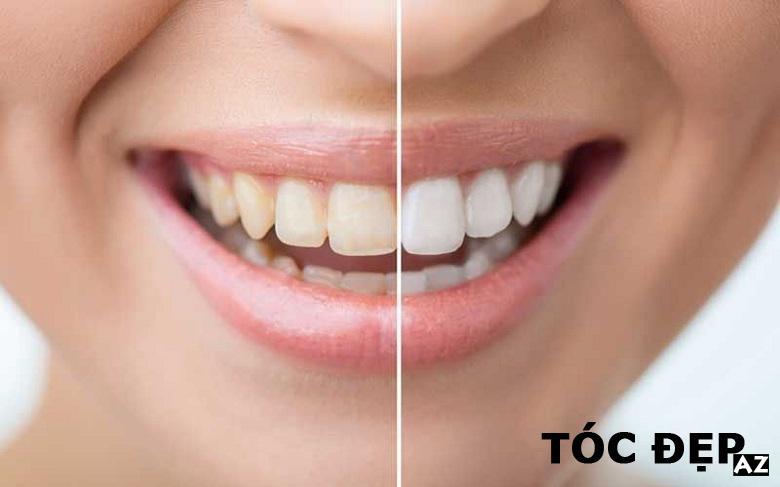 Răng sáng hơn
