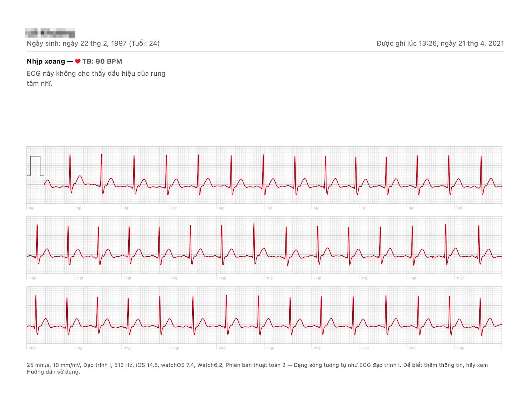 Cách đo điện tâm đồ ECG bằng Apple Watch tại Việt Nam 8